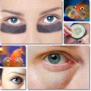 Macchie nere occhi – Cerchi scuri sotto gli occhi