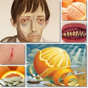 Che cos'è lo scorbuto – Carenza vitaminica