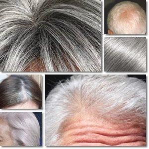 Rimedi capelli bianchi – Coprire i capelli bianchi