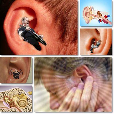 Ronzio e fischi orecchio acufene sintomi e cura