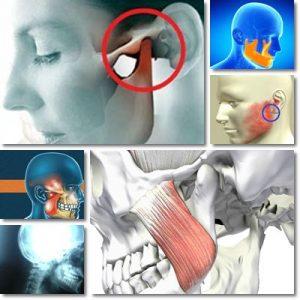 Dolore mandibola orecchio cause sintomi e cura