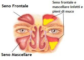 Risultati immagini per sinusite