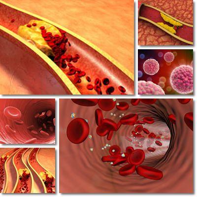 Arteria colesterolo ostruita