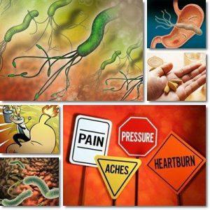 Gastrite: rimedi, sintomi e consigli