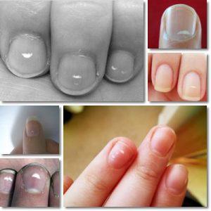 Macchie bianche unghie