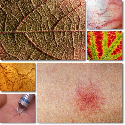 15 Rimedi per le varici capillari