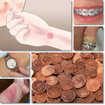 Allergia al nichel: rimedi, sintomi, consigli