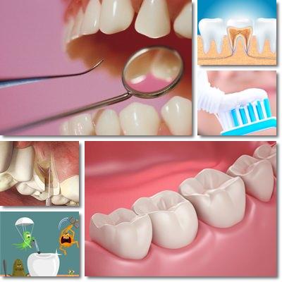come rinforzare i denti