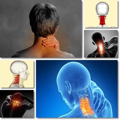 Cervicale: rimedi, sintomi e cura