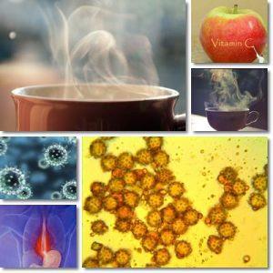 Laringospasmo: Cause, sintomi e rimedi