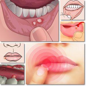 Ulcere della bocca: Cause, Sintomi e Cura