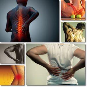 Dolore schiena: Cause, sintomi e cura