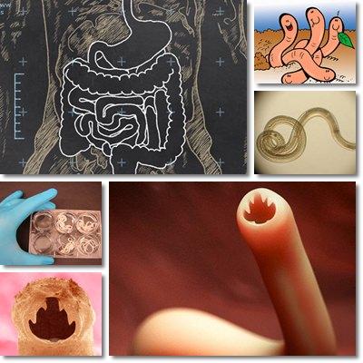 Presenza di parassiti a sintomi di organismo
