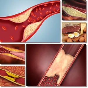 Che cos'è il colesterolo: LDL, HDL