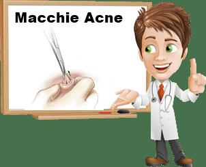 Come eliminare le macchie dell'acne
