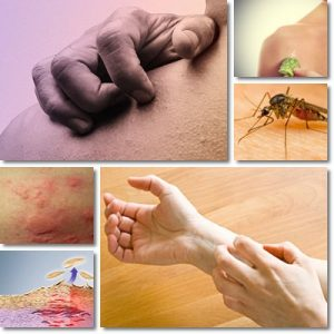 Prurito Pelle: Cause, Sintomi e Cura