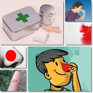 Sangue dal Naso: Cause, Sintomi e Cura