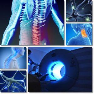 Fibromialgia: Cause, Sintomi e Cura