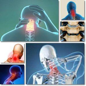 Artrosi Cervicale: Cause, Sintomi e Cura