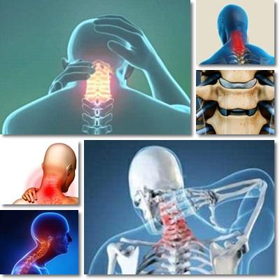 Sentimento di una massa informe in una gola a osteochondrosis