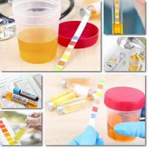 Colore delle Urine: Significato