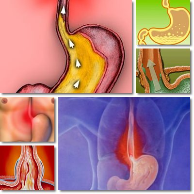 Esofagite: Cause, Sintomi e Cura
