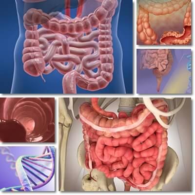 Pulizia del colon