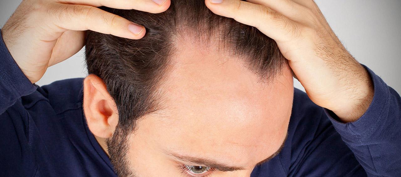 Foltina Plus funziona davvero per fermare la caduta dei capelli?